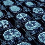 An algorithm developed at McGill allows early detection of Alzheimer's disease