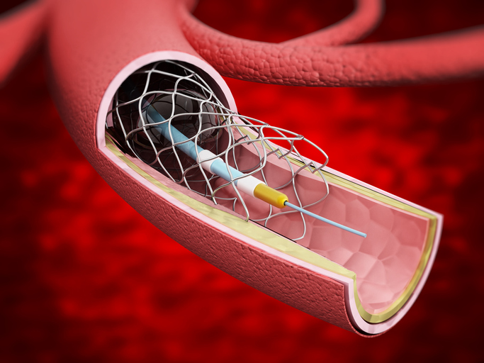 Detailed illustration showing vascular stent inside the vein.