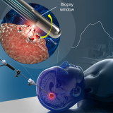 An optical biopsy needle to diagnose cancer