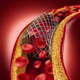 L'impression 3D pour diminuer les risques cardiaques