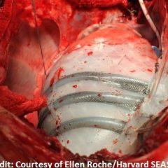 Un robot souple aide le cœur à battre