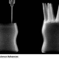 Impression 3D : Des chercheurs créent des objets médicaux à base de silicone liquide !