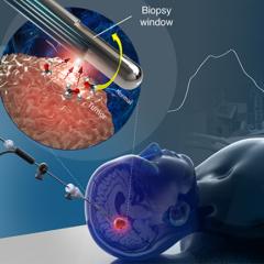 Une aiguille de biopsie optique pour diagnostiquer le cancer